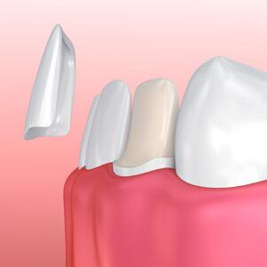 Keramik - Zahnschalen